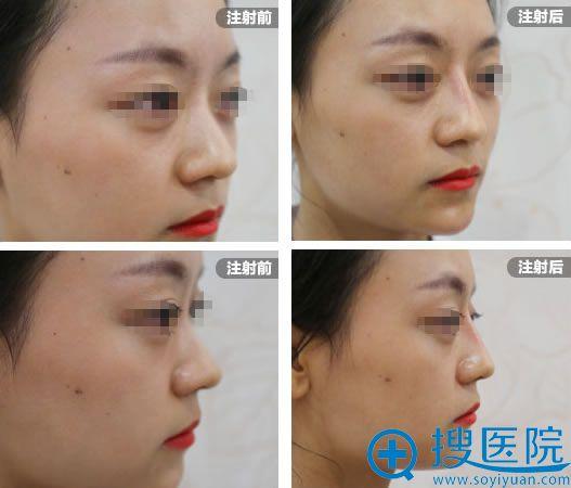 长沙雅美注射玻尿酸前后对比照片