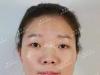 【经历】分享我在石家庄雅芳亚整形医院做全切双眼皮恢复过程
