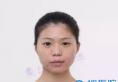 刚在上海伊莱美整形医院找李湘园做面部线雕+颧骨内推7个月图片