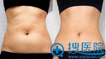 天津美莱腰部溶脂减肥案例图