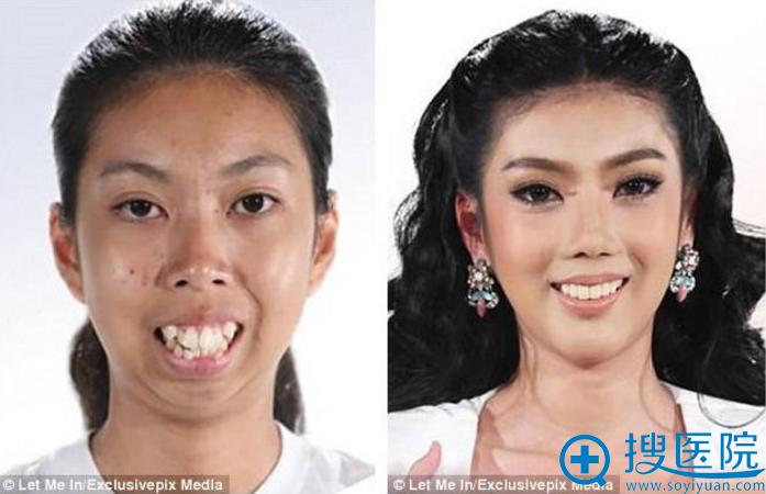 泰国龅牙妹Punbu龅牙矫正与下巴手术前后对比照片