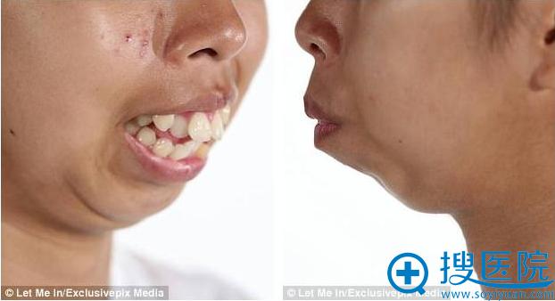 泰国妹Punbu手术前龅牙情况比较严重 下巴也后缩