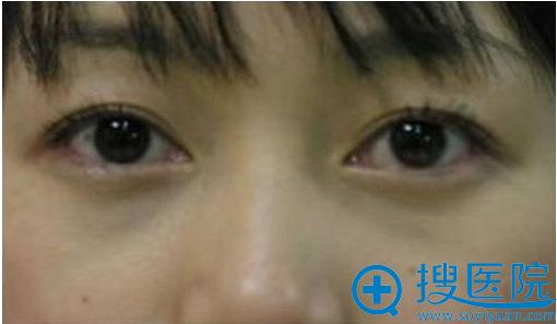 北京溪峰国际去眼袋案例照片