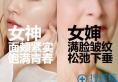 【案例】分享她们刚在郑州东方整形医院做完面部线雕手术的照片