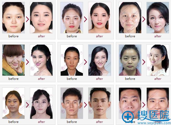 杭州维多利亚医疗美容医院双眼皮案例