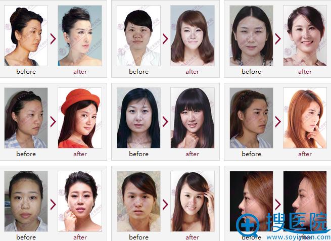 杭州维多利亚医疗美容医院隆鼻案例