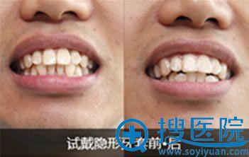 圣贝口腔隐形牙套前后效果对比照片