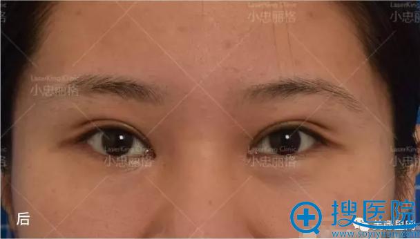 赵小忠做去眼袋手术后照片