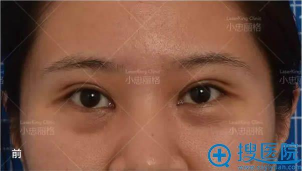赵小忠做祛眼袋手术前照片