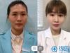 【经历】重庆星宸整形医院自体脂肪填充全脸 打造专属面部线条