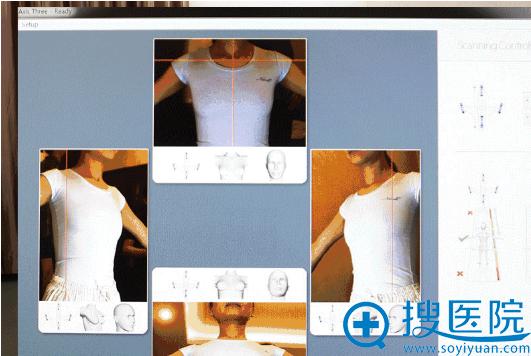 美国的3D数字化模拟系统扫描形成胸部图像