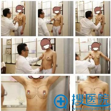 手术前李映雨院长在帮我精心的测量定位
