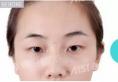 中山爱思特4月眼鼻精雕节优惠价格表 张勇医生隆鼻价格2680元