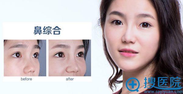 大连爱德丽格韩式生科隆鼻案例图