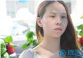 真实案例告诉你深圳美莱整形医院梁晓健隆鼻技术怎么样