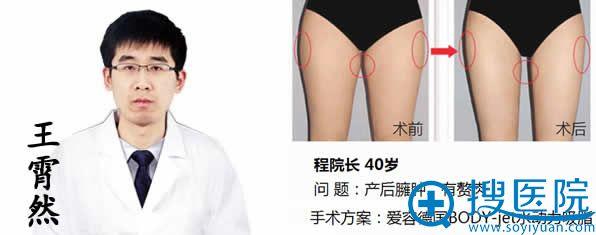 王宵然_济南爱容整形医院吸脂医生