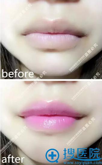 张叙打造的靓丽水晶唇