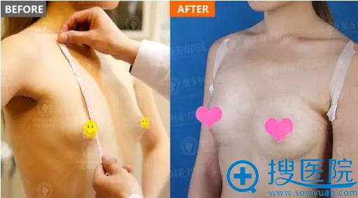 隆胸术前术后对比