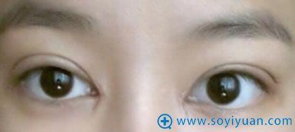 在上海华安割双眼皮第六天案例图