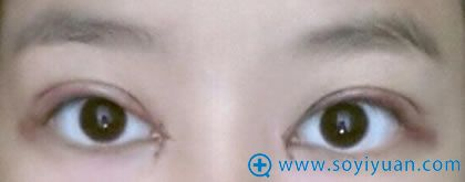 在上海华安割双眼皮第四天