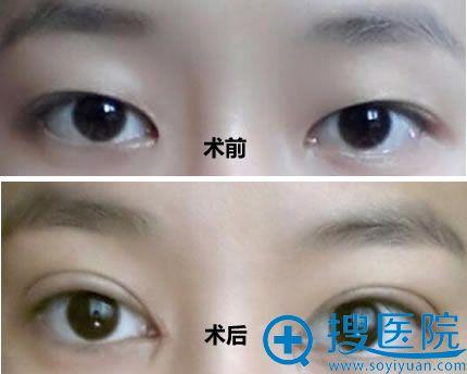 上海华安整形医院割双眼皮案例对比图