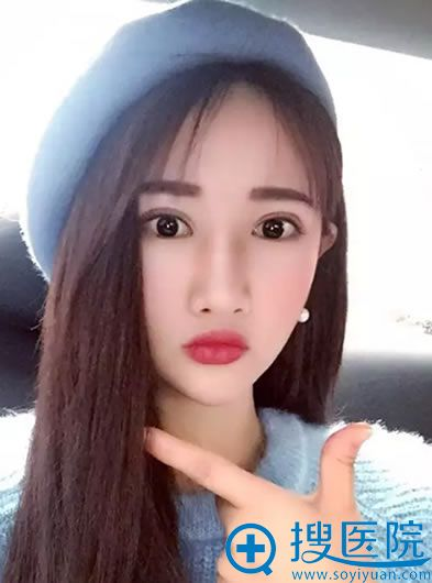 在上海华美做下颌角整形恢复效果图