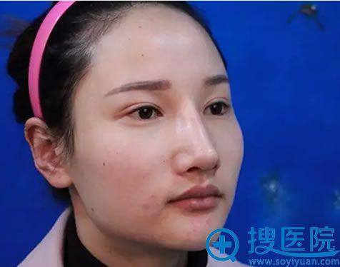在上海华美做颧弓内推和下颌角前的照片