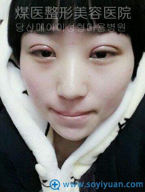 术后前三天,眼睛和脸都有些肿