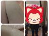 【真人案例】杭州美莱医疗美容医院超冰激光脱毛4折+脱毛全过程