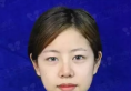 【真人案例】东莞唯美医疗美容医院双眼皮+自体脂肪填充面部