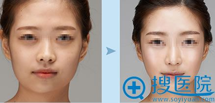 上海时光下颌角+下巴案例对比