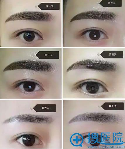 韩式半纹眉术后1-10天结痂脱落过程