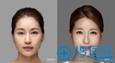 上海华美颧骨缩小术前后对比图