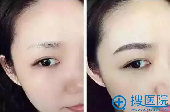 深圳非凡整形美容医院做了韩式半纹眉后,脸变小了