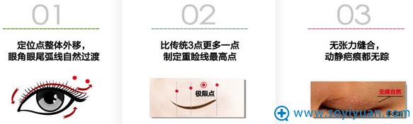 南京康美黄金四点双眼皮三大美眼技术特点:
