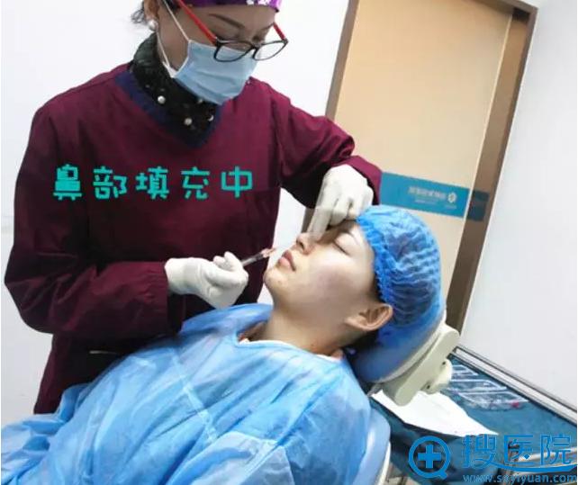 玻尿酸隆鼻中