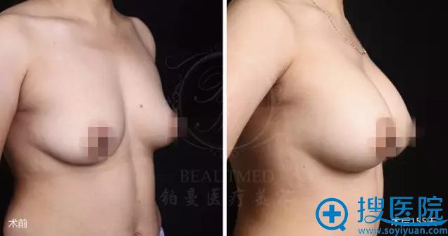 患者麦格假体隆胸术前术后对比照