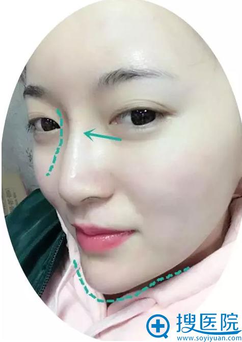 玻尿酸隆鼻术后特写