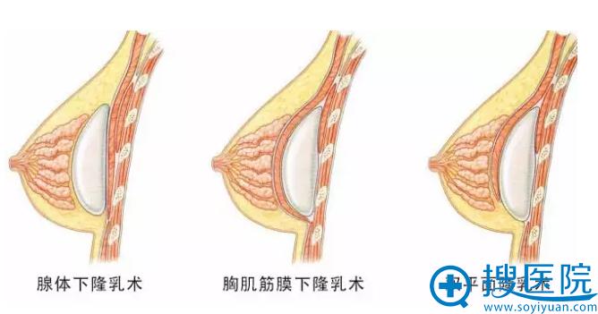 杨永主任讲解不同隆胸手术方法