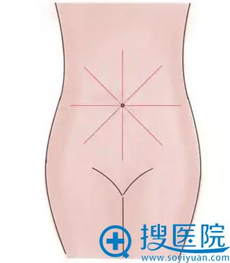 八大处放射状分区吸脂均匀