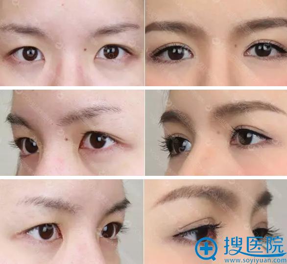 西西双眼皮术前术后三个角度的眼部特写对比