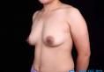 【真人案例】上海铂曼整形医院杨永做进口麦格假体隆胸价格3万