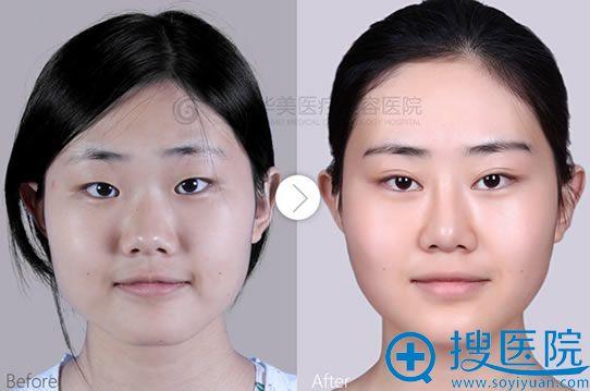 上海华美双眼皮+开眼角+隆鼻+下颌角对比案例