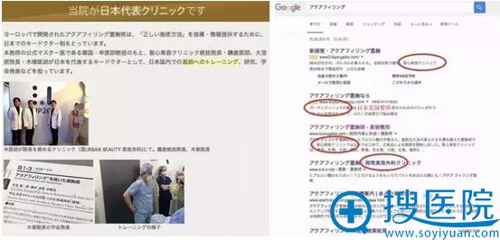 日本aquafilling注射丰胸材料是评价不高的连锁诊所在用