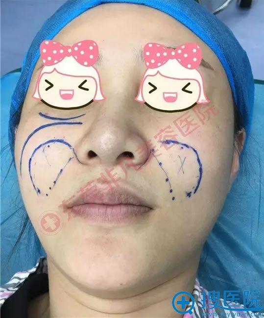 因求美者两侧的法令纹程度不一样,设计时医生有意扩大了右侧脸颊的热塑治疗区域