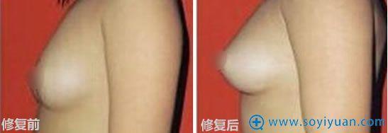 韩国原辰整形外科隆胸修复案例