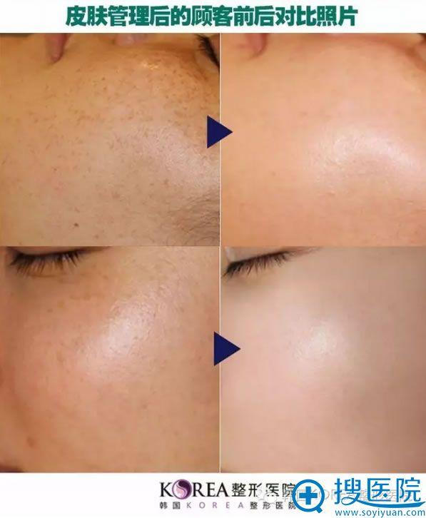 韩国KOREA整形医院皮肤管理后顾客的前后对比照片
