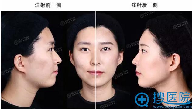 玻尿酸填充全脸效果图