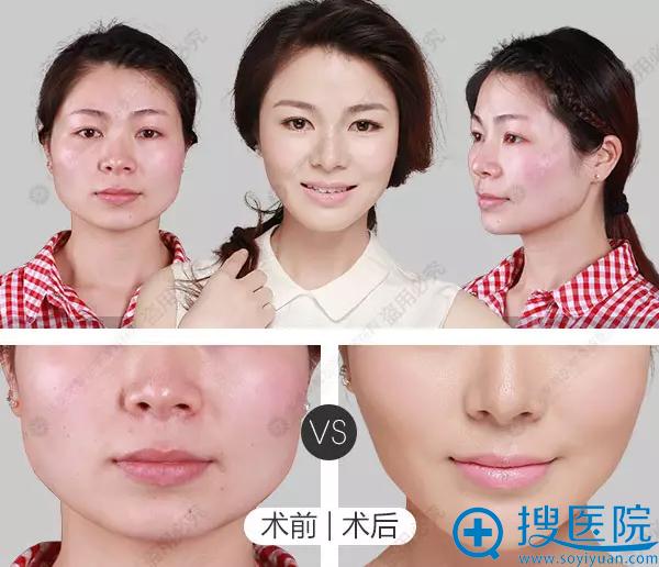 华美紫馨真人案例瘦脸针前后对比图
