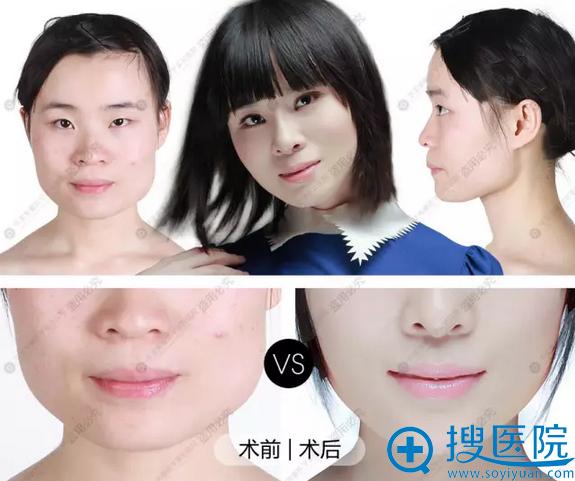 华美紫瘦脸针+玻尿酸丰下巴改脸型前后对比照